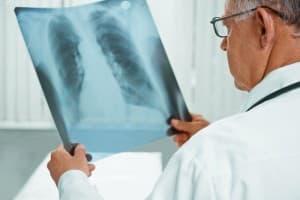 Virale Lungenentzündung