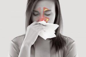Natürliche Heilmittel bei Allergien